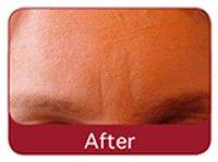 after laser skin treatment