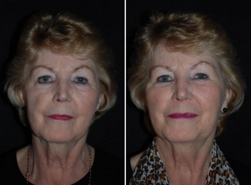 voluma before and after front view