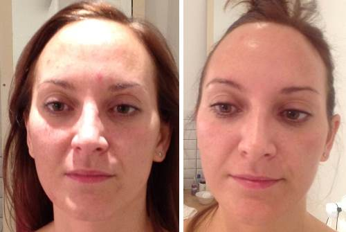 LED before and after blemish treatment