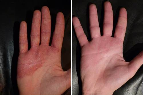 LED before and after dermatitis