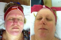 LED before and after rosacea