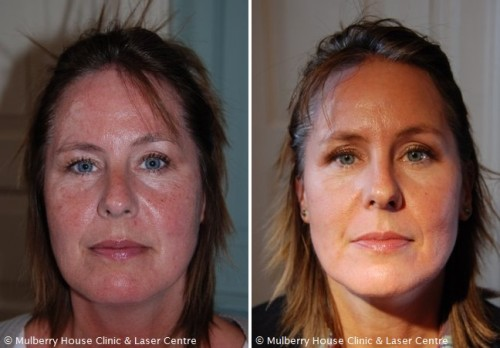Before And After Photos Rosacea Mulberry House Clinic