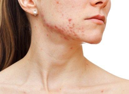 acne northampton