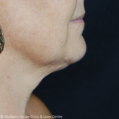 after neck thread lift