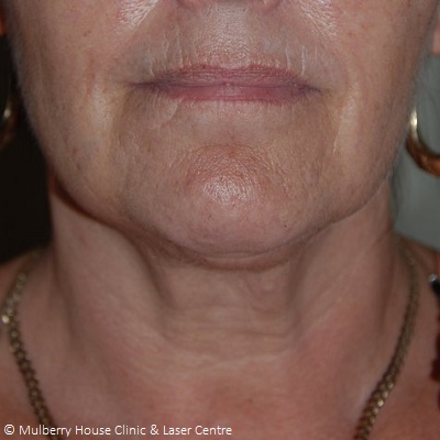 neck thread lift results