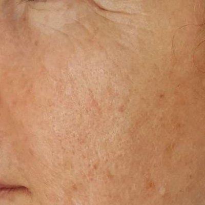after tixel face rejuvenation