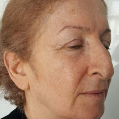 after tixel facial rejuvenation
