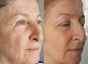 before and after tixel facial rejuvenation