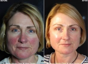 before after zo skin health