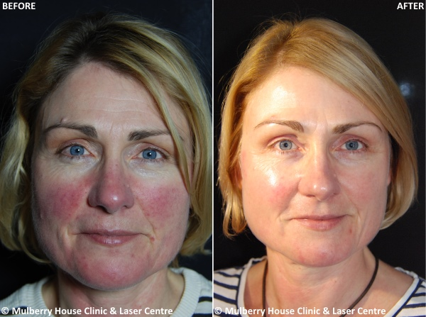 Case Study Rosacea Treatment Mulberry House Clinic
